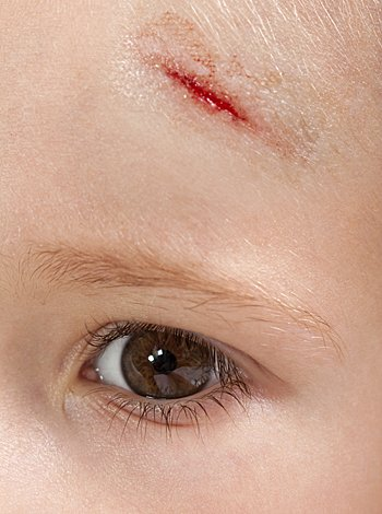Niño con herida en la frente