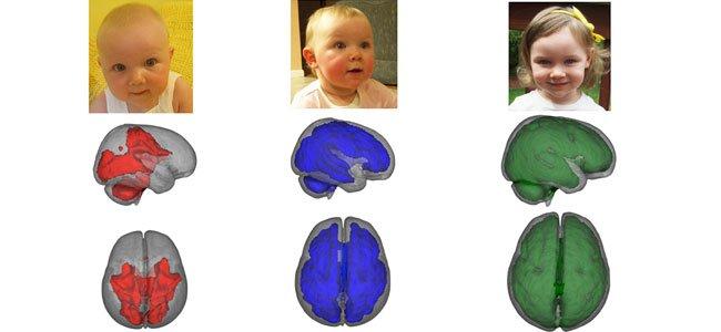 El cerebro del bebé según el tipo de lactancia
