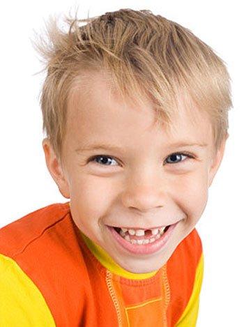 La rotura de los dientes de los niños