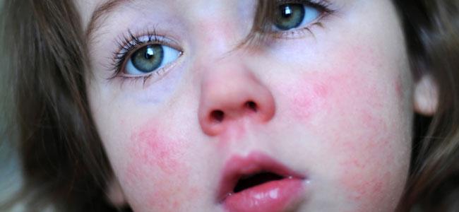 Qué es la enfermedad del bofetón o quinta enfermedad