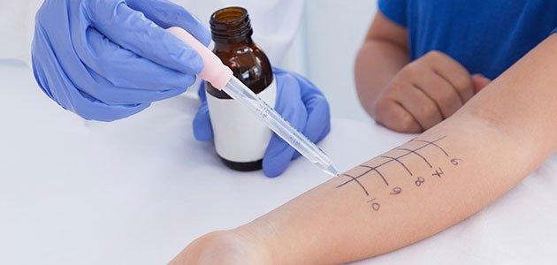 Prueba alergia en brazo
