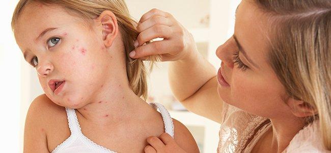 Exantema vírico en los niños