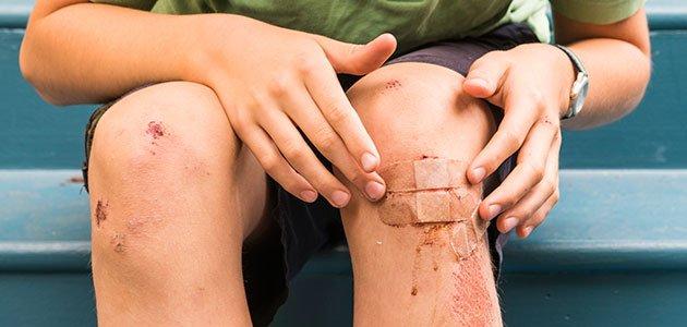 Herida en rodilla de niño