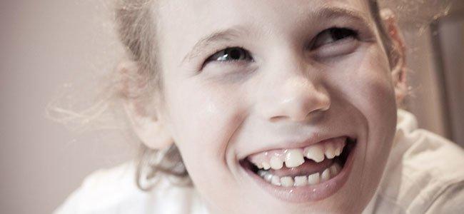 Niña con síndrome de Angelman