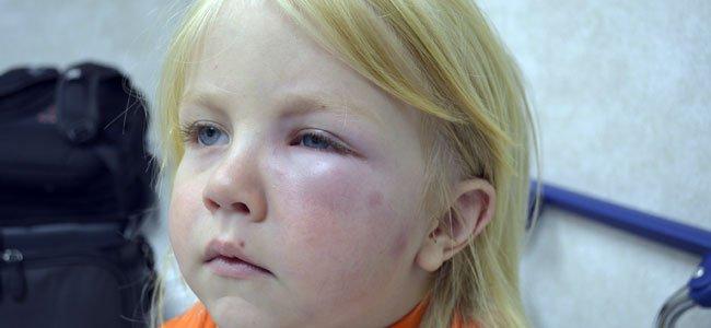 Reacciones alérgicas a las picaduras de insectos en los niños