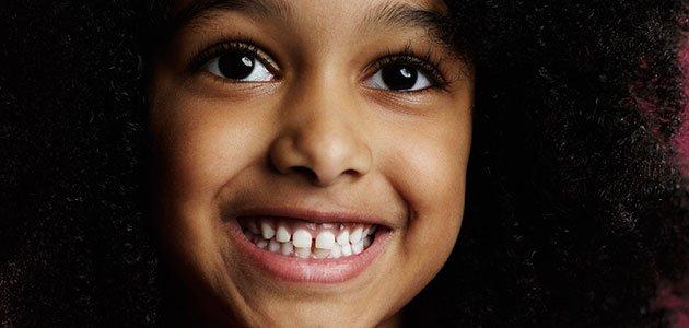 Niña con dientes separados