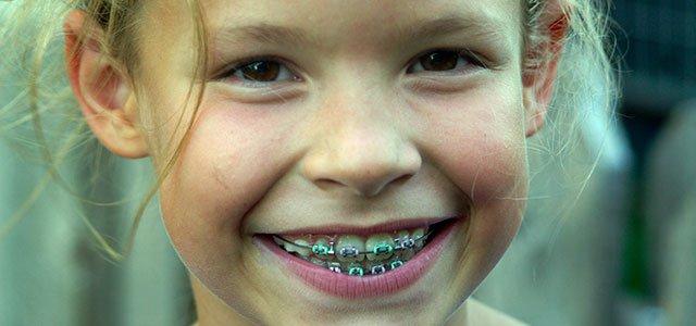 Niña con ortodoncia
