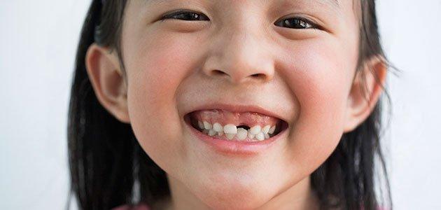 Como Va Boca: El Orden De Caída De Los Dientes De Leche En Los Niños