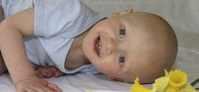 bebé con cáncer