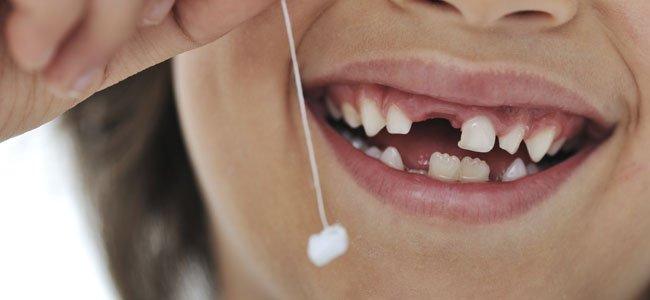 Niño con diente de leche
