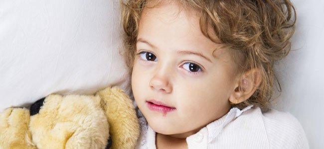 Niño con herpes labial