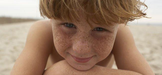Niño con muchas pecas