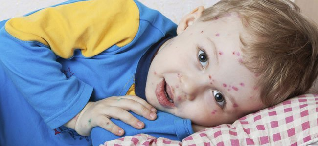 El contagio y las complicaciones de la varicela