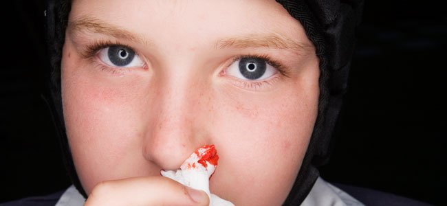 Niño sangra por la nariz