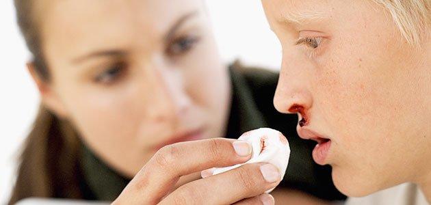 Niño al que le sangra la nariz