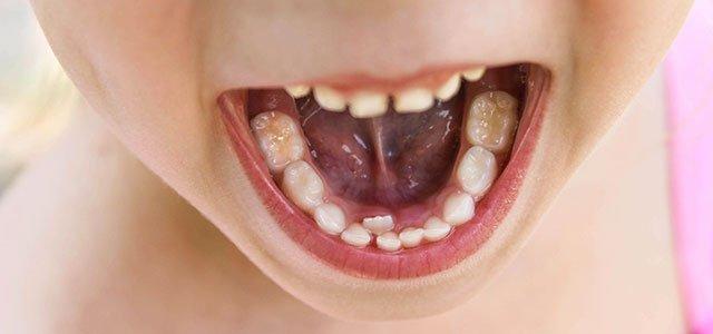 Niña con doble fila de dientes