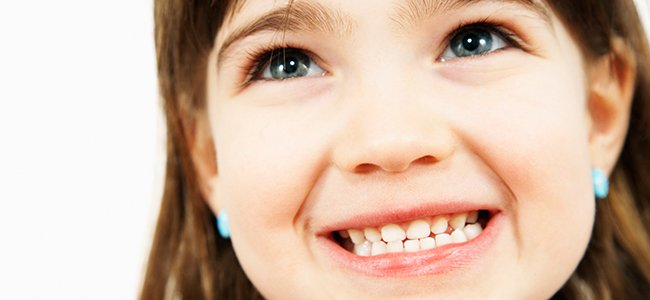 Ortodoncia infantil: braquets