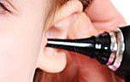 Oídos tapados en el niño