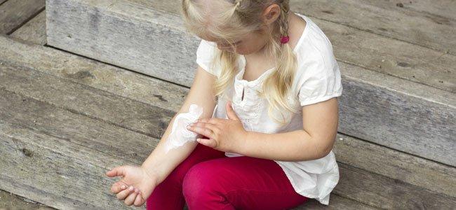 Problemas en la piel de los niños