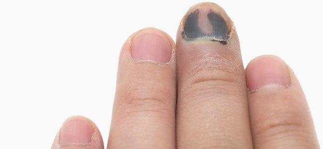 Cuando el niño se pilla el dedo