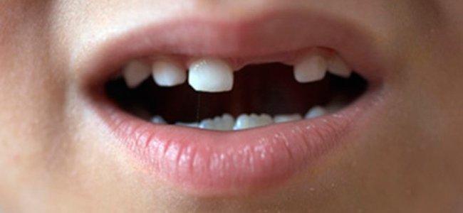 Rotura de dientes en niños