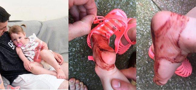 Peligro de las chanclas de verano para los niños