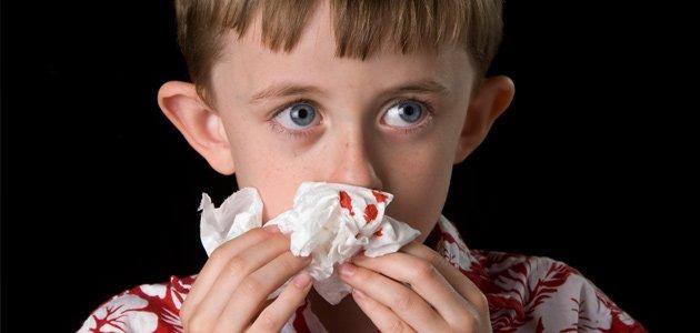 Por qué a los niños les sangra la nariz