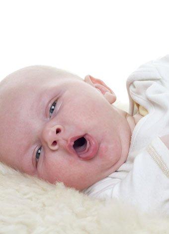 Sibilancias por asma en la infancia