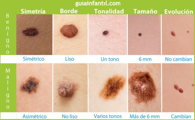 Identifica lunares cancerosos en la piel de tu hijo